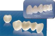 ■光の透過性が従来のジルコニアよりも15%アップ ■天然歯のような透明感のある白い素材 ■差し歯・ブリッジ・奥歯の被せ物に使えます