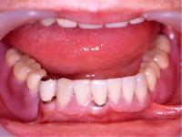部分義歯から総義歯までありますが、きちんと作れば充分に噛める義歯が出来上がります。 ただし、口の中の違和感は他の補綴物に比べて強くなります。 現在は金属クラスプからプラスチック製のクラスプ(目立たない)、磁石やアタッチメントを利用したものなどがあり、インプラントとも併用出来ます。 昔より自然に見せることが出来るようになりました。
