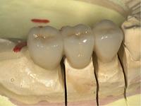 少ない欠損であれば、残っている隣の歯を削って固定式の人工歯を入れることが出来ます。ブリッジです。違和感は少ないですが、欠けた歯の数が多くなるほど難しくなり、保険もきかない症例が増えます。左の写真はフルジャケットブリッジのサンプルです。