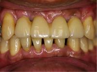 どのような欠損でも自分の歯のように噛めるようにすることが可能です。治療方法は、すべてインプラントにする方法と、義歯と併用する方法とがあります。設計の自由度が上がると同時に、義歯を併用した方が金額的に安くなります。<インプラント成功のために> インプラントは不潔な環境を嫌います。入れた途端に安心してしまう方がいらっしゃいますが、日々の口腔ケアと定期的なメンテナンスは欠かせません。それ以上に手術時の清潔度が成功の大きなカギです。当院では、インプラント手術時は他の患者さまの治療は行いません。空気の汚染を嫌うからです。 術前の口腔清掃にも十分な時間をかけ、アクシデントに備えます。 こうして初めて、信頼性の高い安心できる治療になります。写真は上の前歯4本のインプラントです。