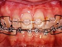 歯並びを修正する目的で行われる治療法ですが、目的はいろいろあります。 子供のときは成長を助けながら歯並びを治したり、顎関節症との関連から噛み合わせを直す場合もあります。 審美目的が一番多いのですが、歯周病で悪くなった歯並びを矯正で直しながら、治療したりします。ご相談ください。
