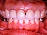 単純に歯を白くする方法(ホワイトニング)から、 歯を削って歯並びまで含めて修正する方法までいろいろあります。 金属の見える治療が嫌な時はお知らせください。 すべて対応しています。