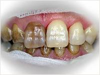 一番大切な治療がメンテナンスになります。 メンテナンスというと治療ではないと考える方が多いと思われますが、これも立派な治療とお考えください。 ご本人の口腔清掃(ブラッシング等)が一番重要なポイントになります(ムシ歯の予防と歯周病の再発防止)。 ですが、100%完璧にプラーク(歯垢または歯糞)をコントロール出来る人はおりません。 ですから、年に何回か歯科医院にて管理を行う必要があるのです。本院では、プロフェッショナルクリーニング、メンテナンスクリーニングと称して、歯科衛生士が皆さんの口腔清掃のお手伝いをしております。長期間のクリーニングで歯が白くなる方もいらっしゃいます。歯石の除去なども同時に行うので、多少お時間と金額が掛かりますが、治療後は皆さんに喜ばれています。 一度ご検討ください。右の写真は、クリーニング前(左側)とクリーニング後(右側)を表しています。